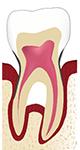 déchaussement dentaire