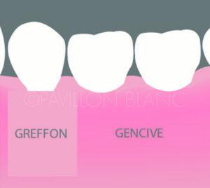 greffe gingivale gencive